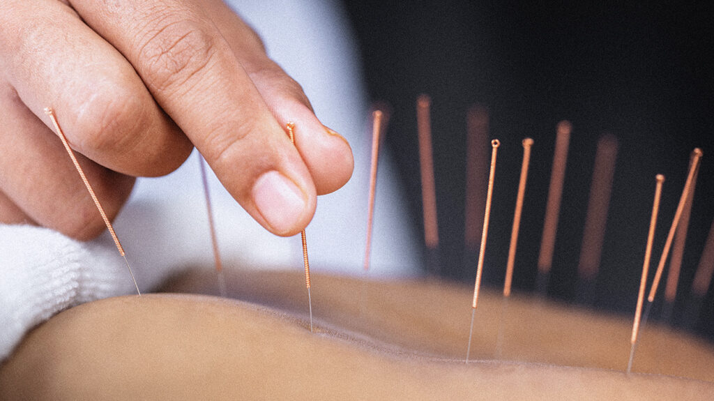 Acupuncture before surgery may reduce pain, opioid use